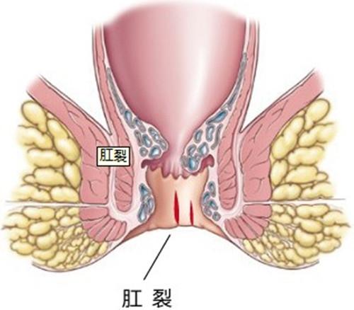 肛裂应该如何预防?