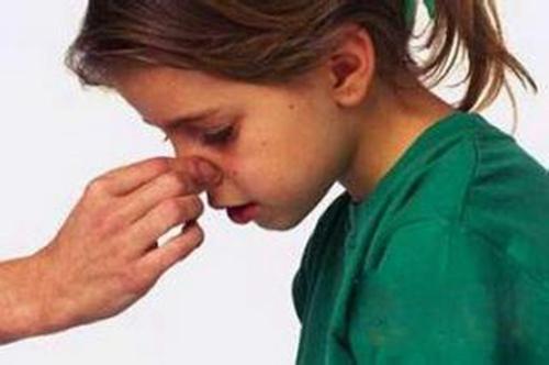 鼻出血的症状有哪些