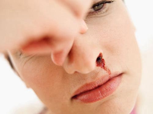 老年人鼻出血会有哪些表现