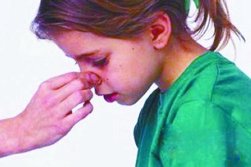 鼻出血的症状都有哪些?