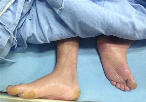小伙乱吃中药患急性泛发性发疹性脓疱病