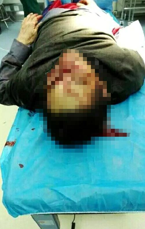 安徽医生被精神病人砍伤不治身亡