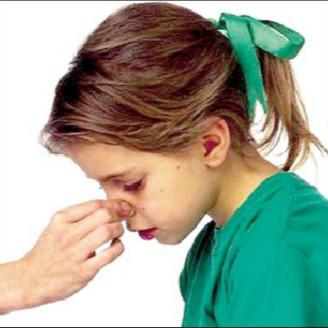教你三招摆脱过敏性鼻炎