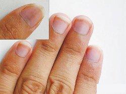 如何从指甲看健康,指甲竖纹看到你身体问题