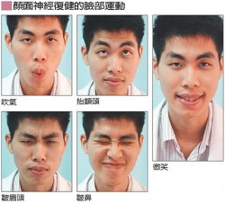 一学生考试压力大,脸部表情麻木乃神经麻痹症