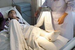 伤脚趾伤口感染致破伤风殒命,破伤风是什么症状