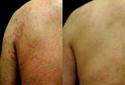 身体出现红色斑块皮肤病,谈治疗干癣的方法有哪些