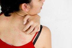 防止霉菌入侵毛囊 如何预防毛囊炎4要领