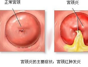宫颈炎症有哪些症状